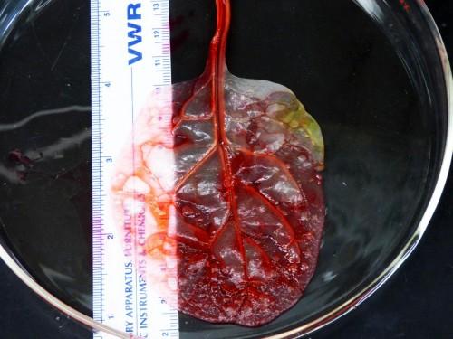 მეცნიერებმა ისპანახის ფოთოლი გულის კუნთის მფეთქავ ქსოვილად გარდაქმნეს