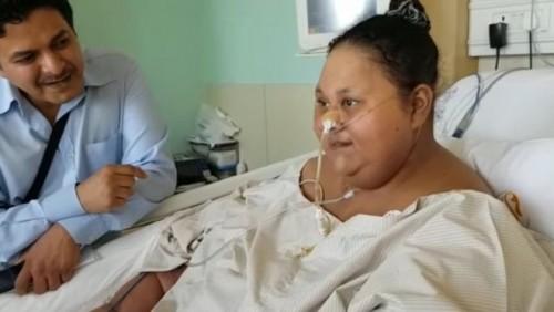 მსოფლიოში ყველაზე ჭარბწონიანმა ქალმა ოპერაციის შემდეგ 250 კგ დაიკლო